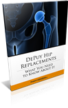 Had a Hip Replacement? This FREE Report Will Answer Your Questions